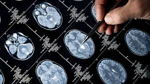 Tratamiento del cáncer de próstata de Alzheimer